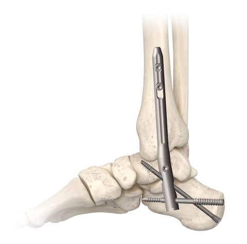 The new TriWay® TibioTaloCalcaneal (TTC) Nail Arthrodesis System from In2Bones Global represents an improved, best-in-class design compared with traditional cannulated systems used by foot and ankle surgeons to enhance performance, stability, and reliability during hindfoot and ankle fusion cases. (Photo: Business Wire)