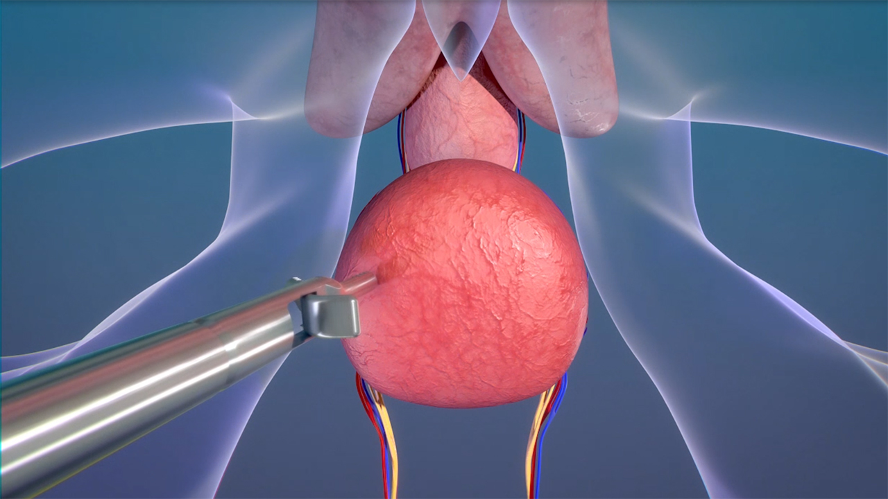 The Levita® Magnetic Surgical System, now FDA cleared for use in prostatectomy procedures