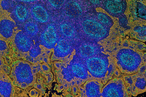 FFPE IF of tonsil, 6-plex + DAPI. Total staining time: 4h12 (with Opal® 7-Color Manual IHC Kit) (Pho ...