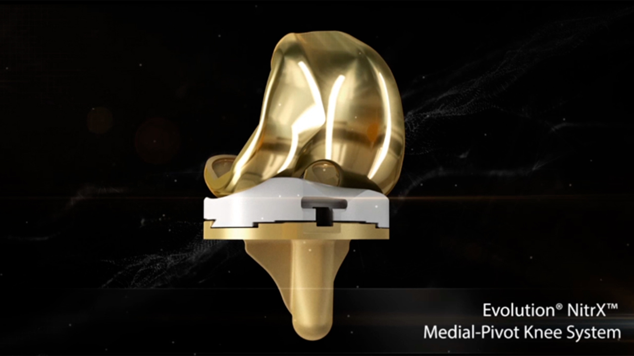Animation demonstrating the benefits of the Evolution® NitrX™ Medial-Pivot Knee