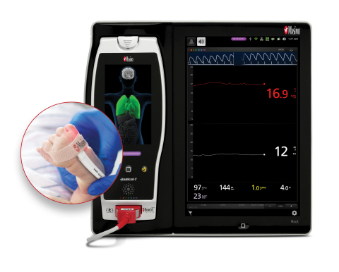 Masimo Root® with SpHb® and PVi® (Photo: Business Wire)