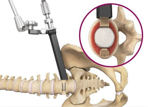 Duo™ Angled Instrumentation System. The angled instrumentation supplements the Duo Lumbar Interbody Fusion System (Graphic: Spineology Inc.)