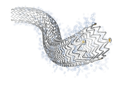 Zilver PTX, the paclitaxel-eluting stent by Cook Medical (Photo: Business Wire)