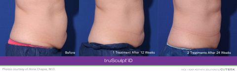 Before and After with truSculpt® iD Body Sculpting Technology (Photo: Business Wire)
