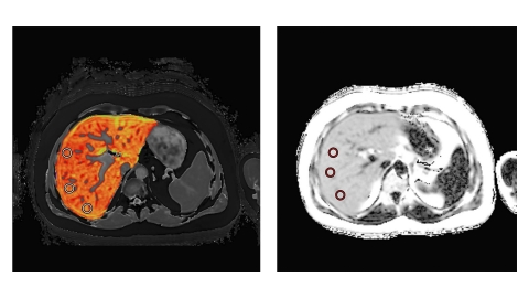 LiverMultiScan images of a liver with high cT1 values and high PDFF (Photo: Business Wire)