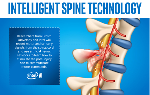 Researchers from Brown University and Intel begin work on a study using artificial intelligence technology to help patients paralyzed by severe spinal cord injuries. (Credit: Intel Corporation)