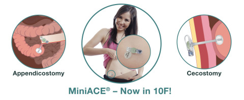 The newly expanded line of MiniACE Low Profile Enema Buttons serves more patients with Antegrade Continence Enema procedures. (Graphic: Business Wire)