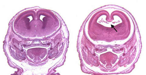 Cannabinoids exacerbate alcohol-induced brain defects. Images are stained sections of fetal mouse brains. (Left) The brain of a control mouse. (Right) The brain of a mouse exposed to alcohol and a cannabinoid on the 8th day of pregnancy. Note the enlarged cerebral ventricle caused by the loss of the midline septal region (black arrow). (Photo: Business Wire)