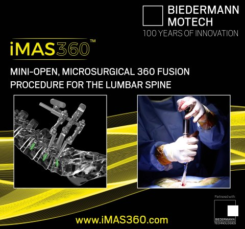 The iMAS360™ is a mini-open, microsurgical 360 fusion procedure for the lumbar spine. (Photo: Business Wire)
