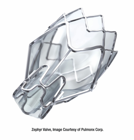 Pulmonx Announces that UnitedHealthcare, the Largest Commercial Insurer in the United States, Has Lifted Coverage Restrictions on the Zephyr Valve, a Minimally-Invasive Treatment Option for Severe Emphysema / COPD (Photo: Pulmonx Corporation)
