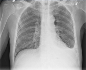 Pleural Effusion for demonstration use only. (Photo: Business Wire)