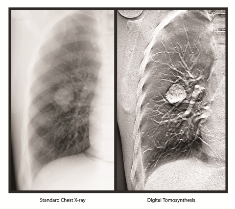 Standard Chest X-ray vs Digital Tomosynthesis (DT) image (Photo: Business Wire)