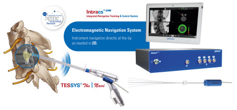 joimax® Intracs® is the first electromagnetic system for endoscopic spine applications that can navigate instruments directly at the tip (Graphic: Business Wire)