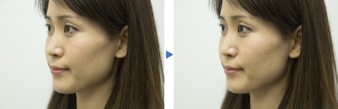Before and after application of the Make-up Sheet (Photo: Business Wire)