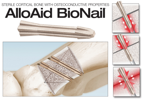 The innovative AlloAid BioNail™ allograft implant gives surgeons an option to traditional metallic implants for hand and foot surgery, providing several benefits both pre- and post-operatively. The BioNail is the sixth allograft product offered by In2Bones Global, the market leader in engineered, sterile allografts. (Graphic: Business Wire)