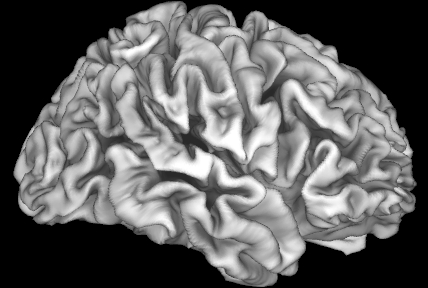 Image of an adolescent brain. The cortex, visible here as folds, forms the outer layer of the brain and is important for information processing. The study led by Dr. Elizabeth Sowell of Children's Hospital Los Angeles shows that the cortex is adversely affected by high risk of lead exposure in children from lower income families. (Photo: Business Wire)