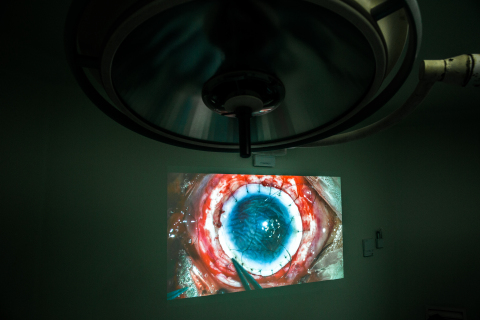 Doctors at the Tej Kohli Cornea Institute perform a conventional corneal transplant surgery (Photo: Business Wire)