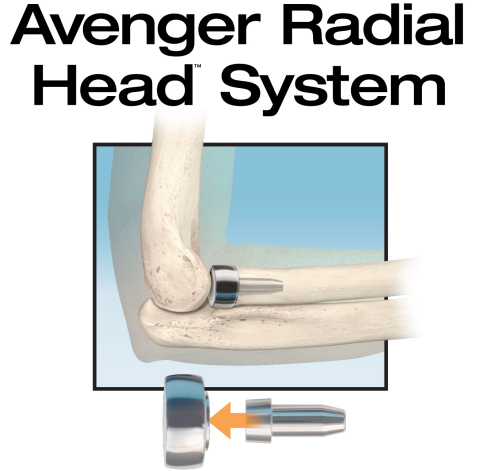 The new Avenger Radial Head System from In2Bones Global is the first to include sterile, single-use instruments. Design features enable easier insertion for trauma cases, improved implant and elbow stability, and positive long-term clinical outcomes. (Graphic: Business Wire)