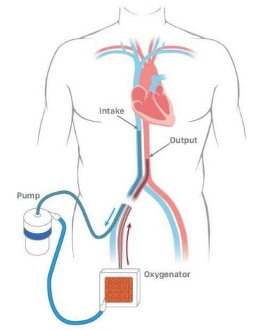 A diagram of a percutaneous ECMO system. Source: Cooper Health Care System, South Jersey Medical Report