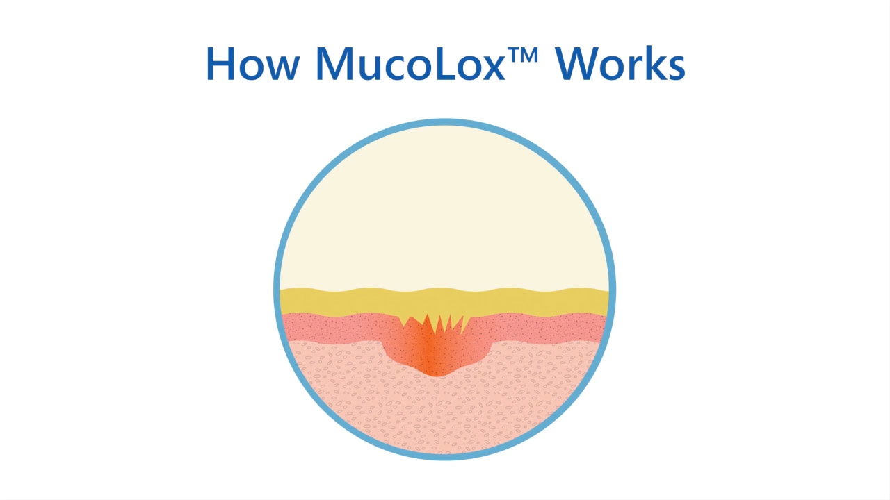MucoLox™ adheres to mucous membranes as it delivers active ingredients, increasing contact time between medication and the affected tissue.