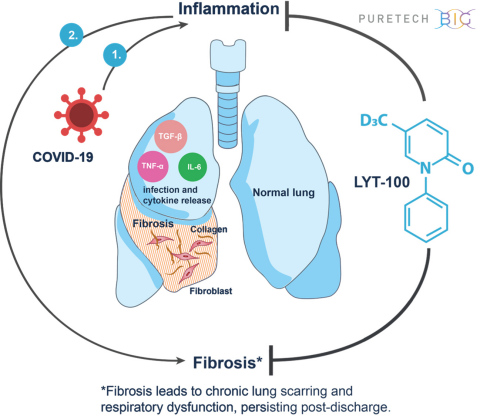 Many interstitial lung diseases are caused by inflammation and fibrosis, which can result in impaired lung function. This dysfunction has been documented in COVID-19 patients, including those who have recovered. PureTech plans to advance its wholly-owned clinical candidate, LYT-100, in a global, randomized, placebo-controlled trial to help. (Photo: Business Wire)
