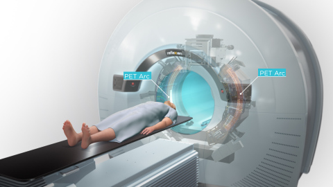 The innovative design of the RefleXion™ X1 machine rotates up to 60 times faster than other linear accelerators and modulates the radiation dose from 100 points per beam station for precise dose delivery. This image depicts two 90-degree PET arcs that sense tumor emissions to guide radiotherapy delivery. (Graphic: Business Wire)