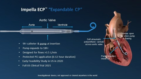FDA Approves Abiomed's First-in-Human Trial of Impella ECP, World's Smallest Heart Pump