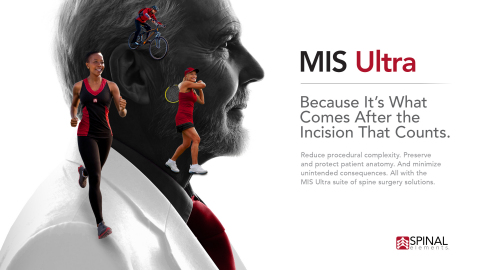 Spinal Elements® Introduces its MIS Ultra™ Platform of Products and Procedures Designed to Minimize the Unintended Consequences of Spine Surgery (Graphic: Business Wire)