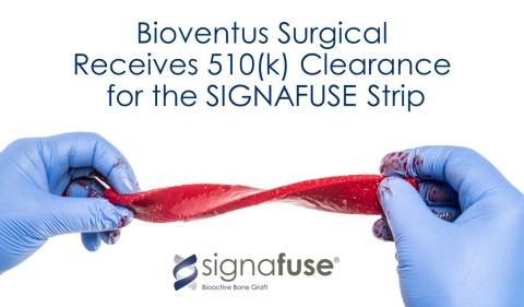 Bioventus Receives 510(k) Clearance for its SIGNAFUSE Bioactive Bone Graft in the strip format. (Photo: Business Wire)