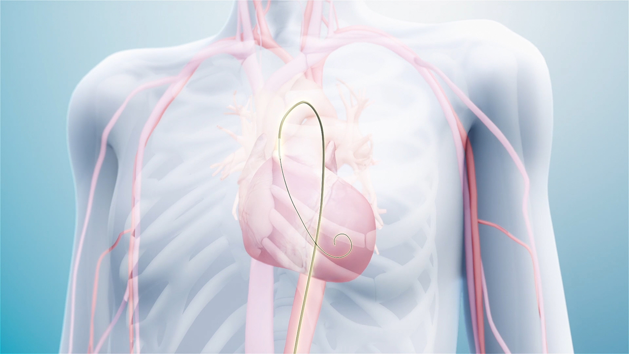 The AccuCinch® Ventricular Restoration System is the first completely percutaneous device designed to directly reshape the left ventricle of the heart, thereby addressing the fundamental issue in the progression of systolic heart failure.