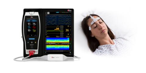 Masimo SedLine® Brain Function Monitoring (Graphic: Business Wire)