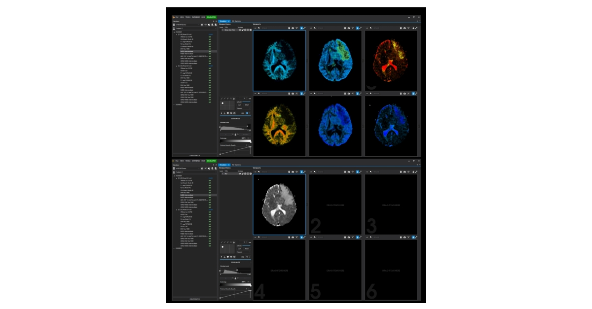 Random Walk Imaging Launches dVIEWR MRI Image Analysis and Workflow Software Platform during ISMRM Conference