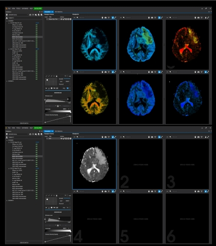 Top: Example of novel parameter maps acquired with dVIEWR powered by MICE Toolkit, providing actionable information on tissue microstructure. Bottom: Conventional diffusion MRI map which is not able to resolve the same wealth of actionable information from the MRI signal. (Phoro: Business Wire)