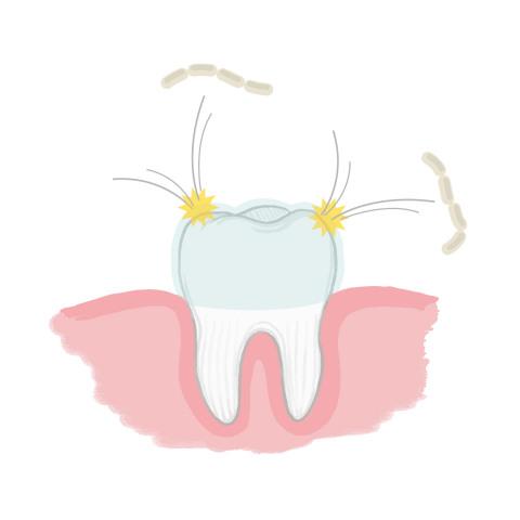 """Wenn Sie Ihre Zähne mit ION-Sei geputzt haben, wird die Oberfläche Ihrer Zähne mit negativen Ionen beschichtet. Diese negativen Ionen stoßen die negativ geladenen Bakterien, die Karies verursachen (S. mutans), ab und verhindern, dass diese sich wieder an der Zahnoberfläche festsetzen. Diese """"Ionenbeschichtung"""" ist absolut unbedenklich und funktioniert gut, wenn die Zähne ausschließlich mit Wasser geputzt werden. (Grafik: Business Wire)"""