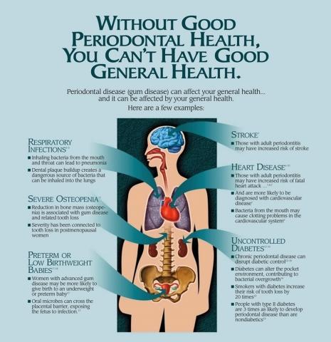 *2 Mundhygiene und allgemeine Gesundheit: Zahnfleischerkrankungen sind die Grundlage aller Krankheiten. Die Mundumgebung steht in engem Zusammenhang mit der Gesundheit des Körpers im Allgemeinen. (Quelle: Oral Health Foundation)