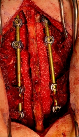 100mm SIGNAFUSE Strips used on each side of a 4-level posterolateral lumbar fusion. (Photo: Business Wire)