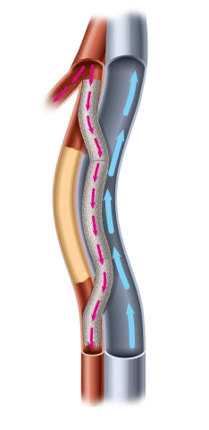 An illustration of a completed Detour Procedure within the Superficial Femoral artery and the Femoral Vein (Graphic: Business Wire)