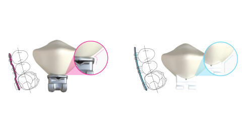 LightForce enables orthodontists to utilize its 3D-printing technology to create custom braces for each individual patient, significantly reducing the number of adjustment visits needed. (Photo: Business Wire)