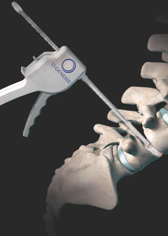 Illustration of the Orthofix O-GENESIS Graft Delivery System (Photo: Business Wire)