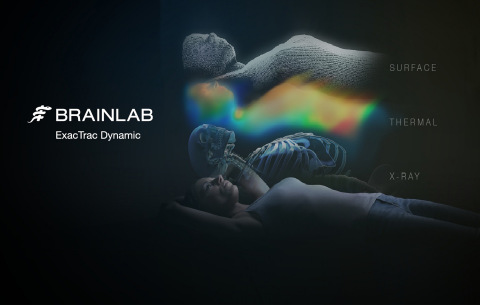FDA-cleared ExacTrac Dynamic supports the delivery of precision radiotherapy with surface and thermal tracking combined with real-time X-Ray monitoring (Source: Brainlab)