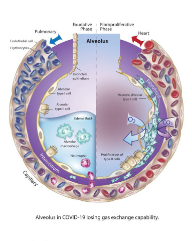 Alveolus in COVID-19 losing gas exchange capability (Graphic: Business Wire)