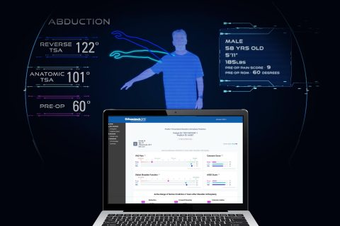 Exactech launches Predict+, the first machine learning-based software that informs surgeons with the potential patient-specific outcomes that can be achieved after shoulder replacement surgery. (Graphic: Business Wire)