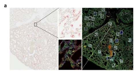 Figure A: SARS Co-V2 is visualized in infected lung tissue from 6 different tissue samples with ACD RNAscope probe (pink), and corresponding virus-positive and virus-negative ROIs were selected from a serial section for GeoMx profiling with the Cancer Transcriptome Atlas. (Graphic: Business Wire)