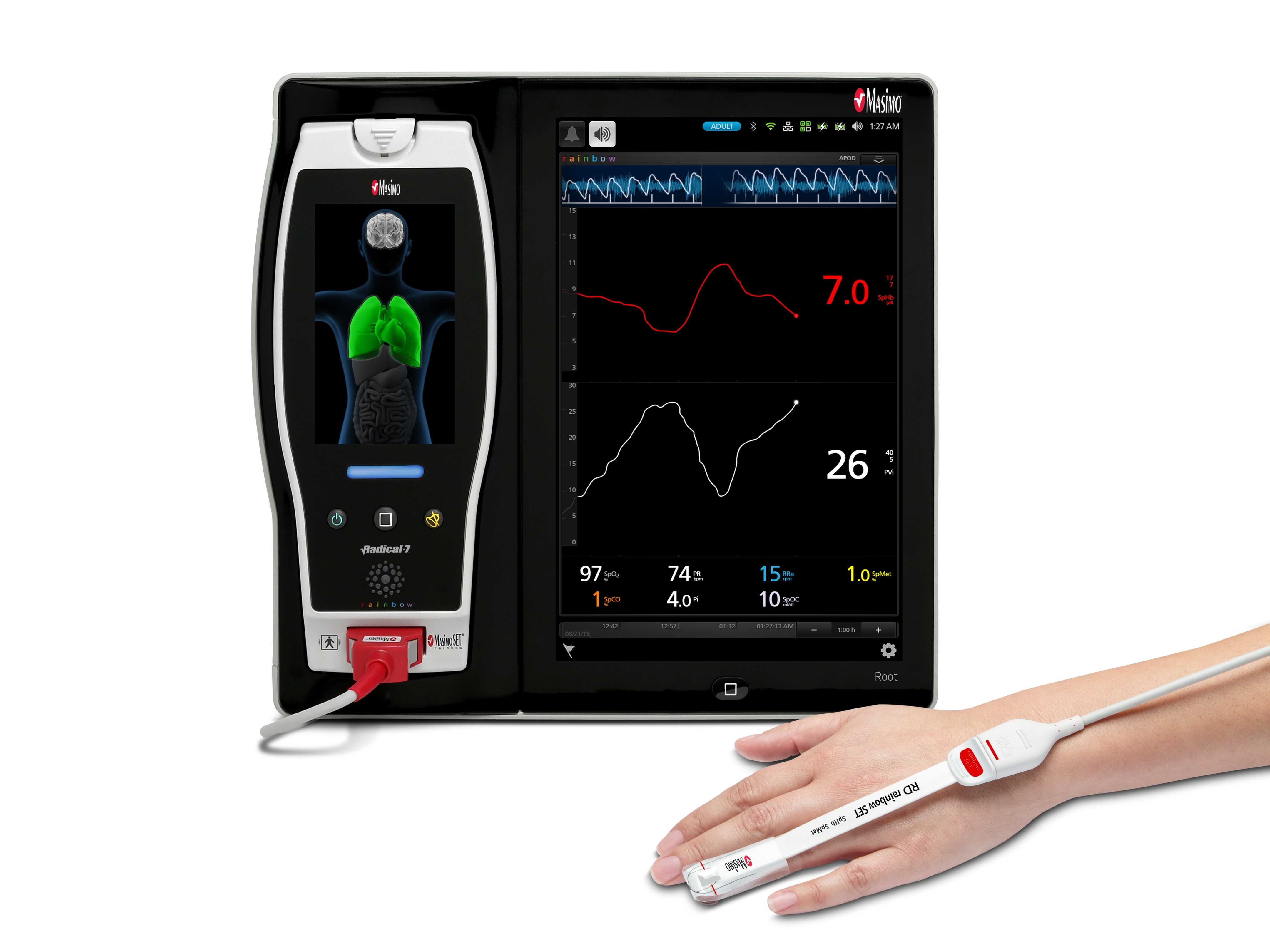 ヘモグロビン メト ヘモグロビンHb|血液ガス|用語集|ラーニング|ラジオメーター株式会社