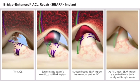 The Bridge-Enhanced® ACL Repair (BEAR®) Implant is the first medical technology to clinically demonstrate that it enables healing – or restoration – of the patient's torn ACL. The surgeon injects a small amount of the patient's own blood into the implant and inserts it between the torn ends of the ACL in a minimally invasive procedure. The combination of the BEAR Implant and the patient's blood enables the body to heal the torn ends of the ACL back together while maintaining the ACL's original attachments to the femur and tibia. As the ACL heals, the BEAR Implant is absorbed by the body, within approximately eight weeks. This new approach is a paradigm shift from the current standard of care – reconstruction that replaces the ACL with a graft – and is the first new treatment for ACL tears in more than 30 years. (Graphic: Business Wire)