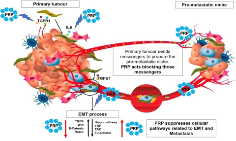 Cell differentiation therapy using pancreatic proenzymes has shown to degrade the fibrotic tissue on the surface of solid tumors and therefore might impair tumor engrafting, tumor niche formation and even cancer stem cell subpopulation activation. (Photo: Business Wire)