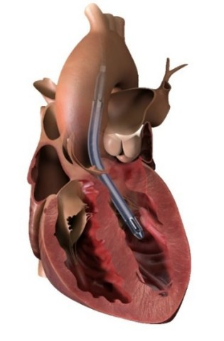 Impella 5.5 with SmartAssist pulls blood from the left ventricle through an inlet area near the tip of the pump and expels blood through the catheter into the ascending aorta. (Graphic: Business Wire)