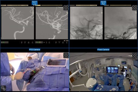 MedPresence® proctor view during an intracranial vascular implant case. By using MedPresence, a proctor in Canada with extensive experience placing the implant was able to supervise the procedure taking place at Lahey Hospital & Medical Center in Burlington, MA. The views were configured remotely and included a live digitally subtracted roadmap (top left) and unsubtracted (top right) images in various planes. A pan-tilt-zoom camera (bottom left) provides a view of the operator's hands and equipment and demonstrates the radial access. A fixed camera mounted to the ceiling provides an overview of activity in the room (bottom right). (Figure reproduced from Journal of NeuroInterventional Surgery, International teleproctoring in neurointerventional surgery and its potential impact on clinical trials in the era of COVID-19: legal and technical considerations, Emanuele Orru', Miklos Marosfoi, Neil V Patel, Alexander L Coon, Christoph Wald, Nicholas Repucci, Patrick Nicholson, Vitor M Pereira, Ajay K Wakhloo, Published Online First: 21 December 2020, Copyright notice 2021 with permission from BMJ Publishing Group Ltd.)
