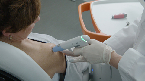 The CellFX System for cellular-based skin conditions (Photo: Pulse Biosciences)