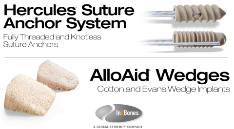 In2Bones Global, Inc. today announces the U.S. launch of its Hercules™ Suture Anchor System and AlloAid® Wedges for lower extremity surgeries. These advanced-design implant systems expand the company's already robust portfolio of pre-sterilized and OR-ready extremity products. (Graphic: Business Wire)